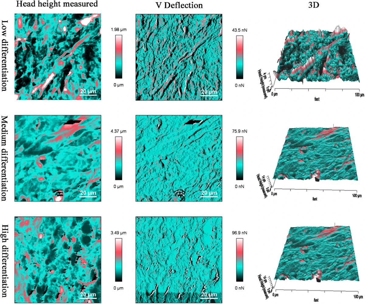 "Figure 5 from Baoping Zhang et al. ""Tissue mechanics and expression of TROP2 in oral squamous cell carcinoma with varying differentiation"": Surface morphology of OSCC tissue sections via AFM detection, irregular morphology appeared in the low differentiation NanoWorld Pointprobe CONTR AFM probes were used for the Atomic Force Microscopy"